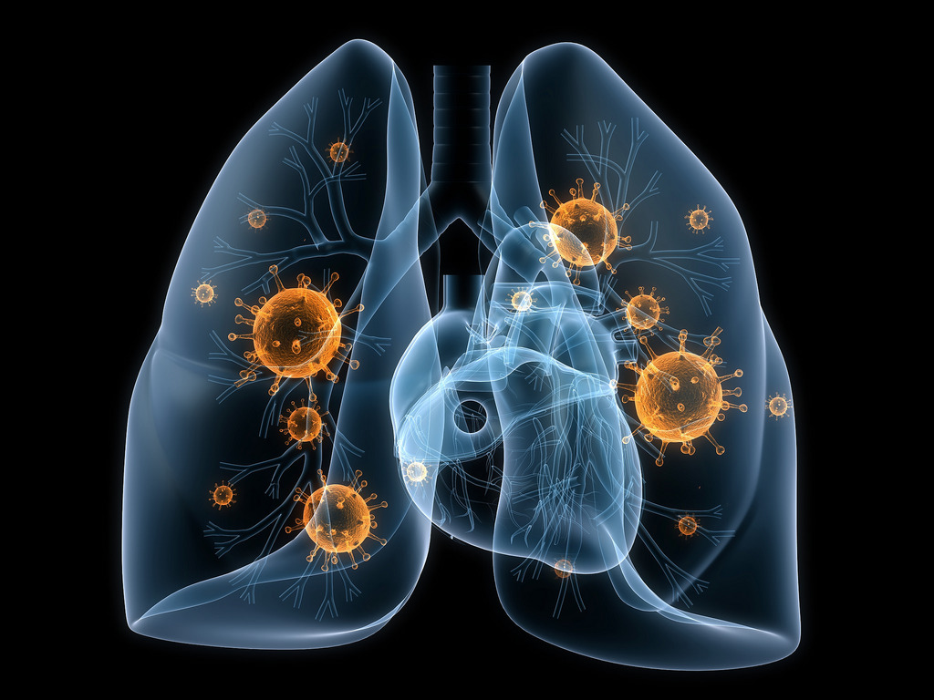 Lungs and Viruses